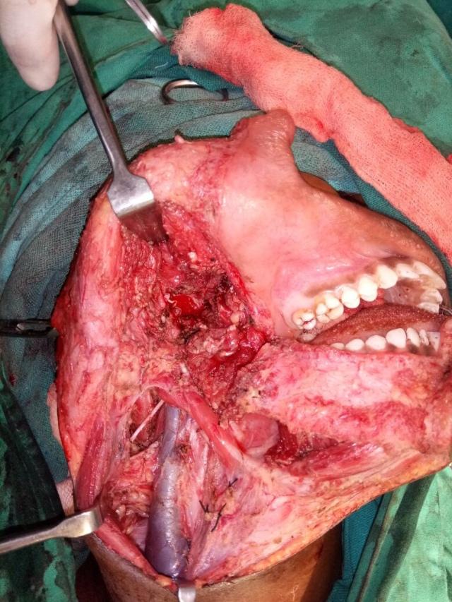 aneurysmal bone cyst  mandibular   u00ab radiozen